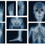 What Is Bone Cancer And What Are Its Types, Causes & Treatments