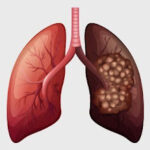 Why Lung Cancer Is An Epidemic By Lungs Cancer Specialist In Delhi